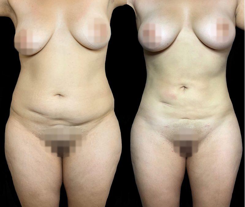 Lipomarcacion Abdominal